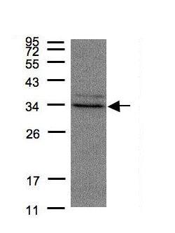 Western blot - Anti-MST antibody (ab154514)