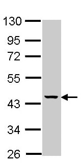 Western blot - Anti-MVK antibody (ab154515)