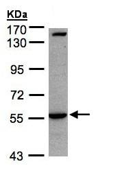 Western blot - Anti-IL1 Receptor I/IL-1R-1 antibody (ab154524)
