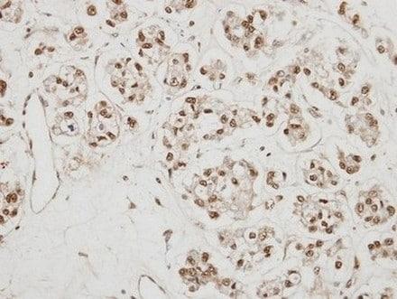 Immunohistochemistry (Formalin/PFA-fixed paraffin-embedded sections) - Anti-CBP80 antibody (ab154532)