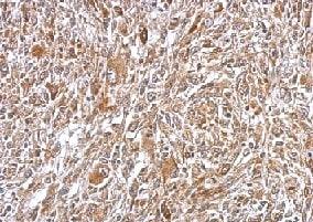 Immunohistochemistry (Formalin/PFA-fixed paraffin-embedded sections) - Anti-Plasminogen antibody (ab154560)