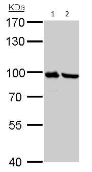 Western blot - Anti-Plasminogen antibody (ab154560)