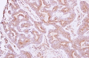 Immunohistochemistry (Formalin/PFA-fixed paraffin-embedded sections) - Anti-NELL1 antibody (ab154561)