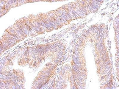 Immunohistochemistry (Formalin/PFA-fixed paraffin-embedded sections) - Anti-ATP5F1 antibody (ab154564)