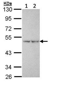 Western blot - Anti-PFKFB1 antibody (ab154573)