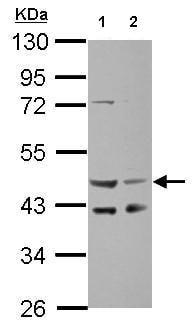 Western blot - Anti-SERPINE2/PN-1 antibody (ab154591)