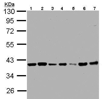 Western blot - Anti-PPP1CB antibody (ab154600)