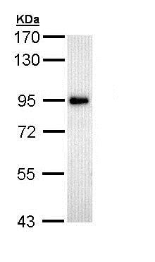 Western blot - Anti-ZAK antibody - N-terminal (ab154602)
