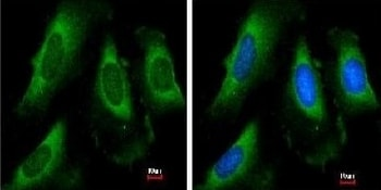 Immunocytochemistry/ Immunofluorescence - Anti-PGK1 antibody (ab154613)