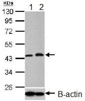Western blot - Anti-PGK1 antibody (ab154613)