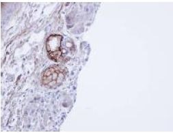 Immunohistochemistry (Formalin/PFA-fixed paraffin-embedded sections) - Anti-CEACAM6 antibody (ab154614)