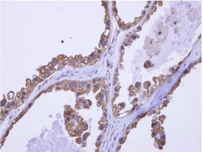Immunohistochemistry (Formalin/PFA-fixed paraffin-embedded sections) - Anti-HAGE antibody (ab154634)
