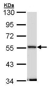 Western blot - Anti-Septin 11 antibody (ab154638)