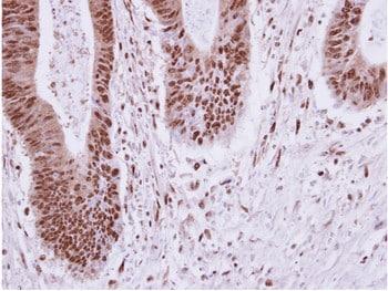 Immunohistochemistry (Formalin/PFA-fixed paraffin-embedded sections) - Anti-ELP2 antibody (ab154643)
