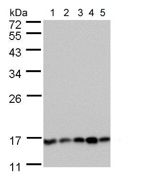 Western blot - Anti-Calcineurin B/CNB antibody (ab154650)
