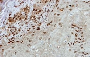 Immunohistochemistry (Formalin/PFA-fixed paraffin-embedded sections) - Anti-BRF2 antibody (ab154658)