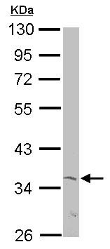 Western blot - Anti-mH2A2 antibody (ab154687)