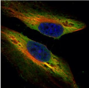 Immunocytochemistry/ Immunofluorescence - Anti-TWF1/Twinfilin-1 antibody (ab154725)