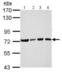 Western blot - Anti-CIP75 antibody (ab154728)