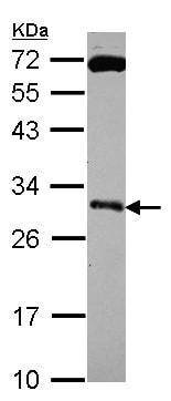 Western blot - Anti-Kallikrein 10/K10 antibody (ab154735)