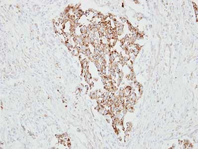Immunohistochemistry (Formalin/PFA-fixed paraffin-embedded sections) - Anti-RARRES1 antibody (ab154742)