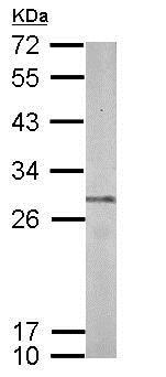 Western blot - Anti-Proteasome 20S beta 7/PSMB7 antibody (ab154745)