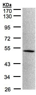 Western blot - Anti-MOK protein kinase antibody (ab154759)
