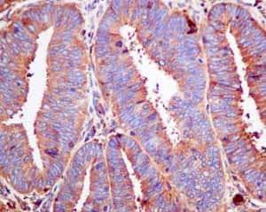 Immunohistochemistry (Formalin/PFA-fixed paraffin-embedded sections) - Anti-COG4 antibody [EPR10111] (ab154795)