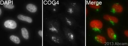 Immunocytochemistry/ Immunofluorescence - Anti-COG4 antibody [EPR10111] (ab154795)