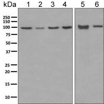 Western blot - Anti-ClC-2 antibody [EPR6492(2)] (ab154798)