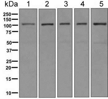 Western blot - Anti-AASS antibody [EPR9145(B)] (ab154800)