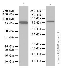 Western blot - Anti-PFKM antibody [EPR10734(B)] (ab154804)