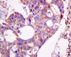 Immunohistochemistry (Formalin/PFA-fixed paraffin-embedded sections) - Anti-LAP3 antibody [EPR10330] (ab154809)