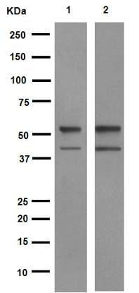 Western blot - Anti-PTEN antibody [EPR9941] (ab154812)