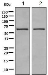 Western blot - Anti-PPP2R1B antibody [EPR10158] (ab154815)