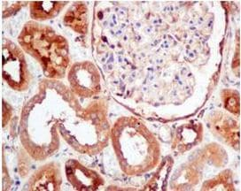 Immunohistochemistry (Formalin/PFA-fixed paraffin-embedded sections) - Anti-PKM antibody [EPR10139] (ab154816)