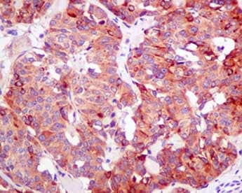 Immunohistochemistry (Formalin/PFA-fixed paraffin-embedded sections) - Anti-Seryl-tRNA synthetase/SERS antibody [EPR10684(B)] (ab154825)