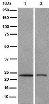 Western blot - Anti-RAB39B antibody [EPR9651] (ab154826)