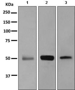 Western blot - Anti-MSY2/YBOX2/YBX2 antibody [EPR2814(2)] (ab154829)