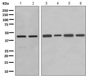 Western blot - Anti-GBGT1 antibody [EPR10467] (ab154837)