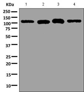 Western blot - Anti-Hexokinase 1 antibody [EPR10135(B)] (ab154839)