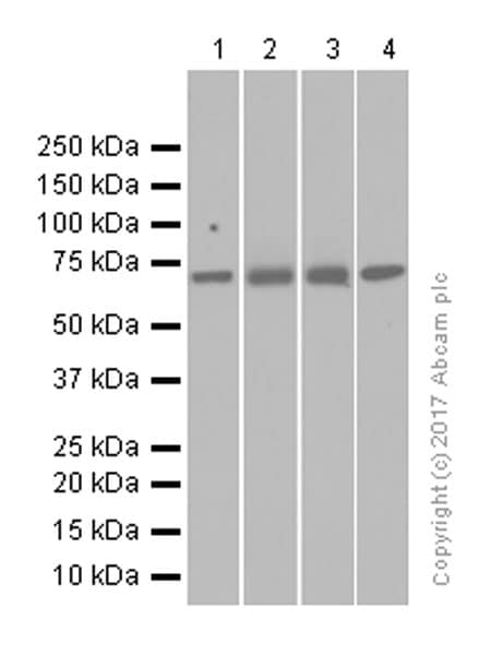 Western blot - Anti-GUCY1B3 antibody [EPR8822] (ab154841)