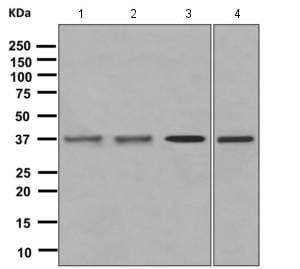 Western blot - Anti-GNAX+GNAZ antibody [EPR8654] (ab154846)