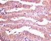 Immunohistochemistry (Formalin/PFA-fixed paraffin-embedded sections) - Anti-PRKAR1A (phospho S83) antibody [EPMAYR1-111] (ab154851)