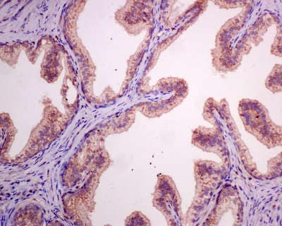 Immunohistochemistry (Formalin/PFA-fixed paraffin-embedded sections) - Anti-Protein Kinase A regulatory subunit I alpha/PRKAR1A (phospho S83) antibody [EPMAYR1-111] (ab154851)