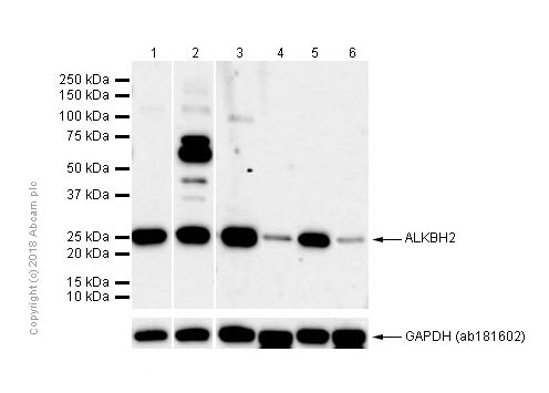 Western blot - Anti-ALKBH2 antibody [EPR6177(2)] (ab154859)