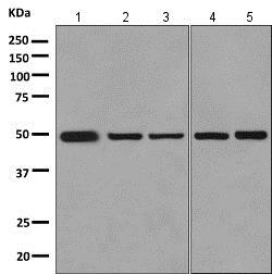 Western blot - Anti-GRAMD2 antibody [EPR10060] (ab154861)