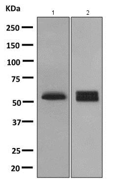 Western blot - Anti-PPP3CC antibody [EPR10601] (ab154863)