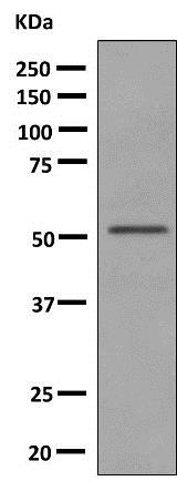 Western blot - Anti-UGT2B15 antibody [EPR10615(B)] (ab154864)