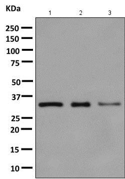 Western blot - Anti-Cyclophilin E antibody [EPR10805(B)] (ab154865)